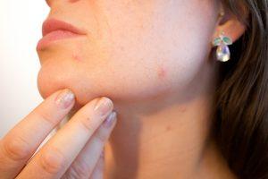 acné en barbilla